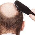 Migliori integratori per capelli: quali scegliere?