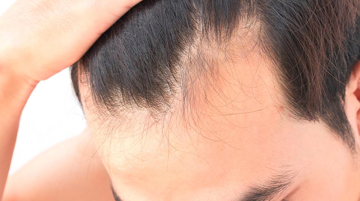 Rimedi contro la perdita dei capelli