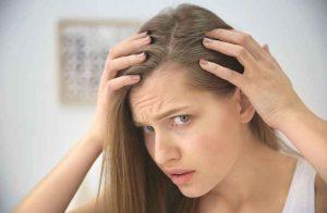 perdita capelli donna