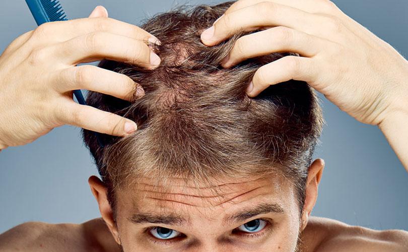 Cosa fare per aumentare la ricrescita dei capelli?