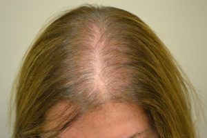 alopecia androgenetica femminile