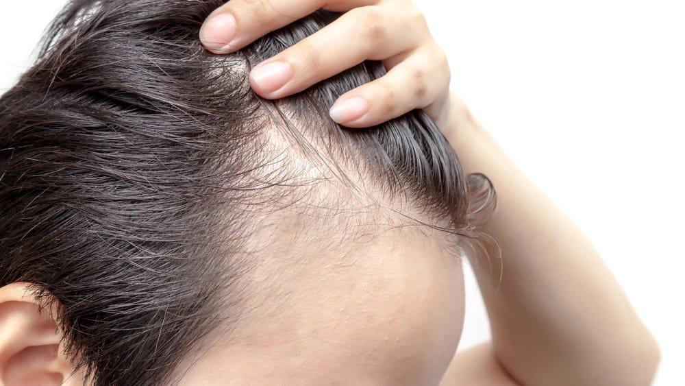 Alopecia androgenetica maschile: Cause, Cure, Sintomi e Rimedi