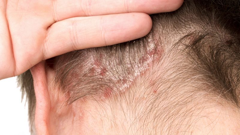 alopecia seborroica rimedi