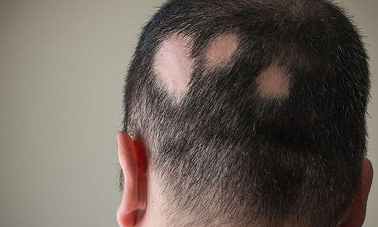 alopecia areata cos'è e come si cura