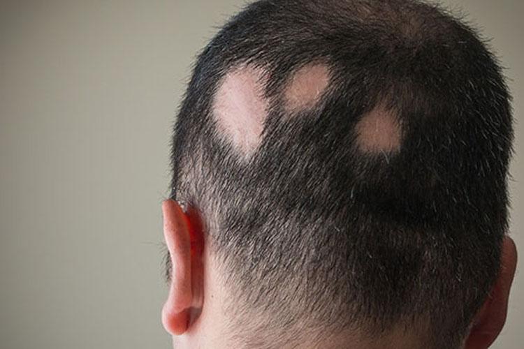 Alopecia areata: cos'è e come si cura