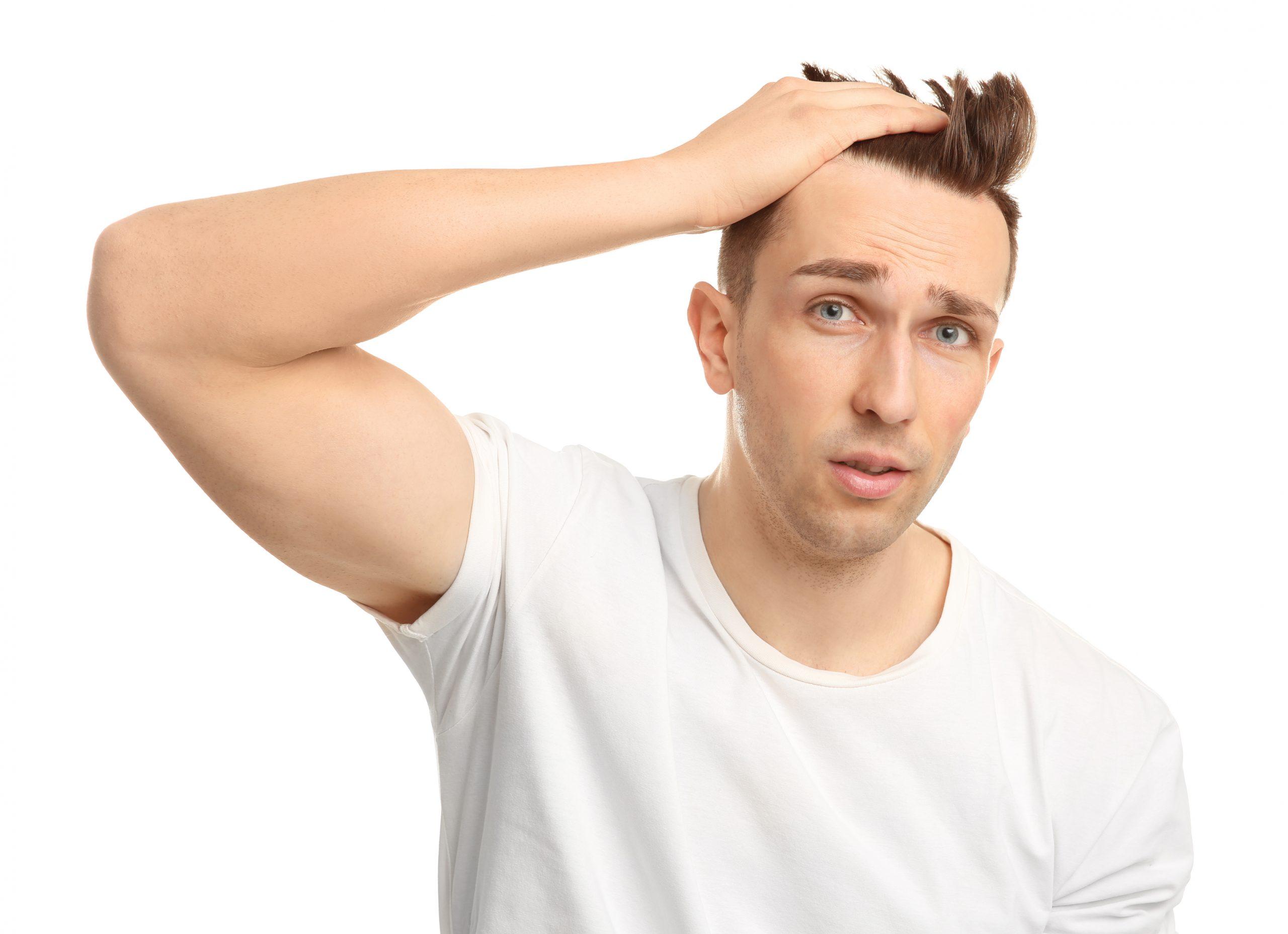 Calvizie giovanile: principali cause e rimedi