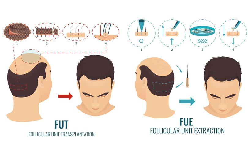 tecniche trapianto capelli