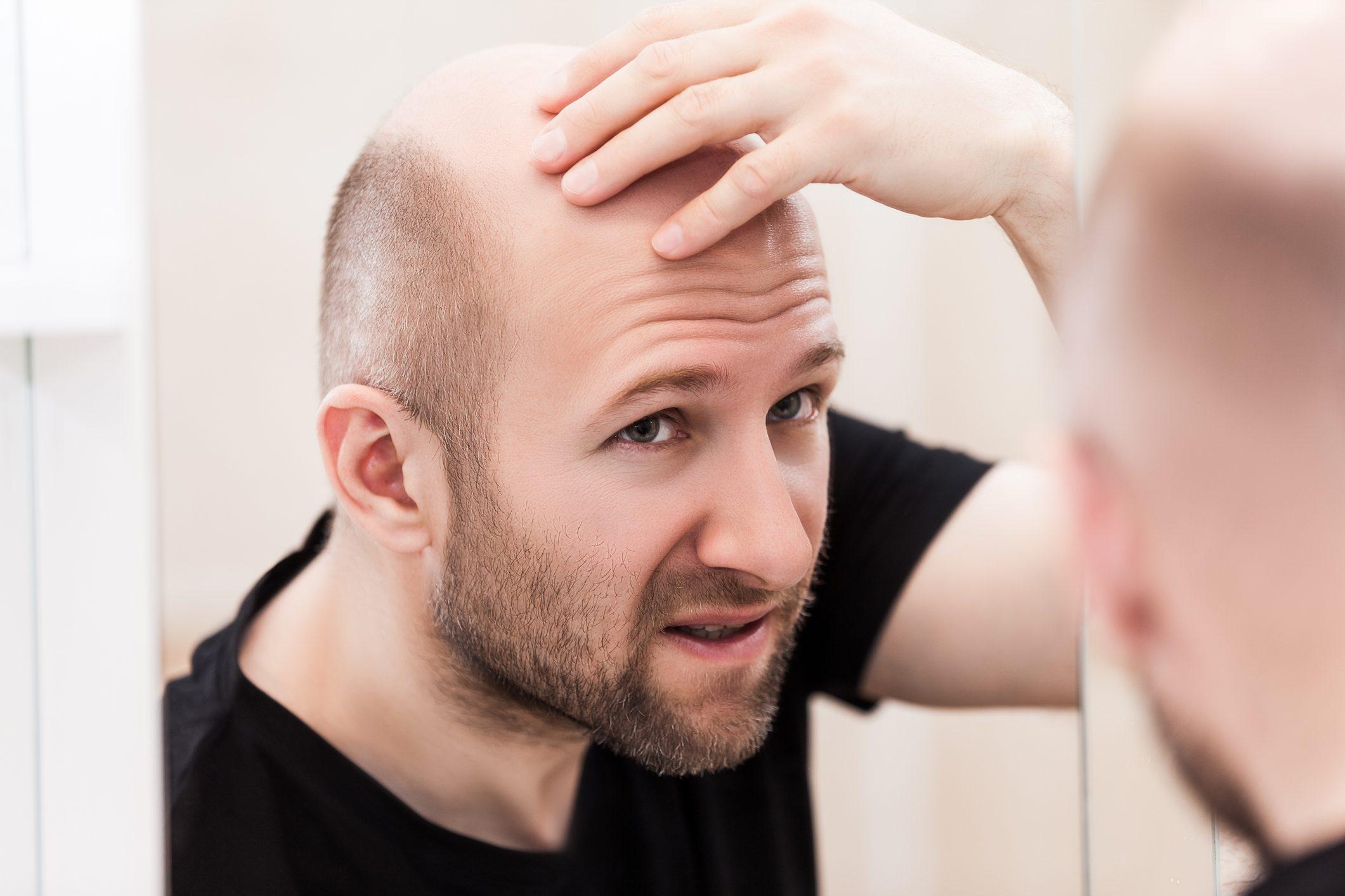 Quanti tipi di alopecia esistono? Cause e rimedi