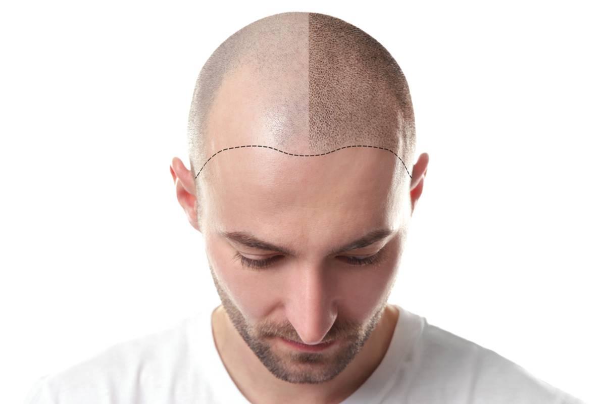 Trapianto di capelli: cos'è e come funziona
