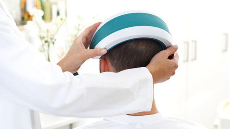 casco terapia laser capelli