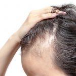 Diradamento capelli e stempiatura: cause e possibili rimedi