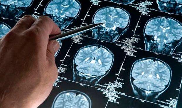 magnetoecefalografia