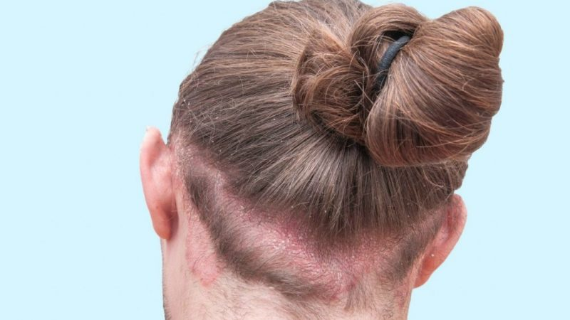 psoriasi cuoio capelluto