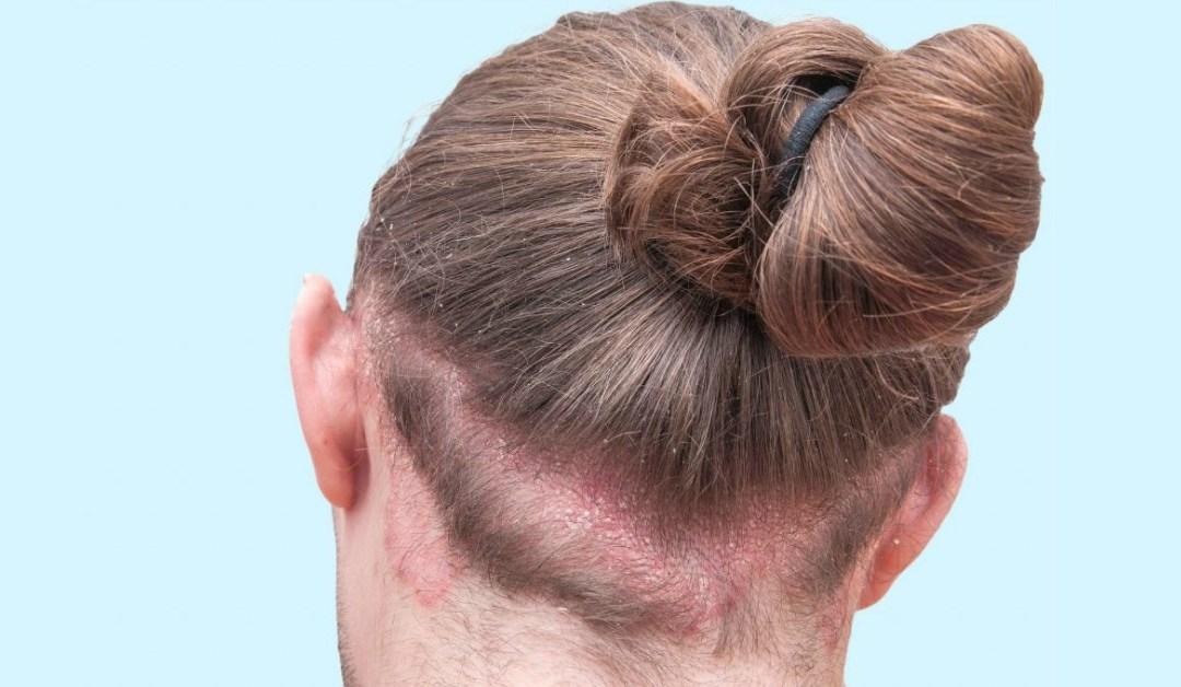 Psoriasi del cuoio capelluto: cos'è e come si cura