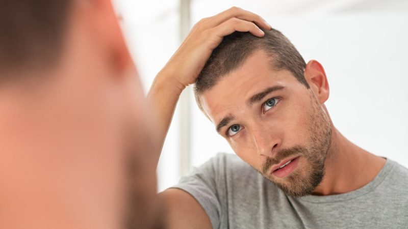 problemi di capelli più frequenti